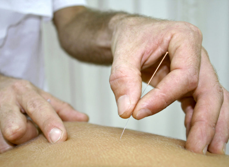 Dry Needling TIM Fysiotherapie